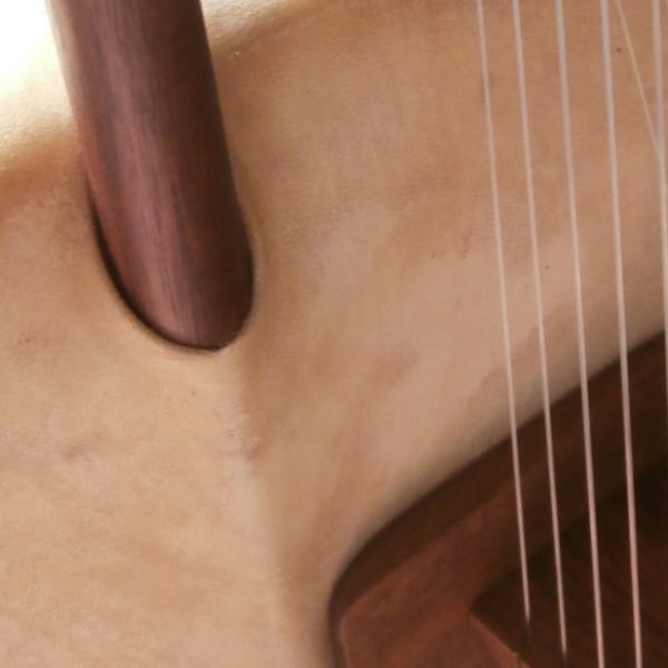 Top strings on right side of bridge